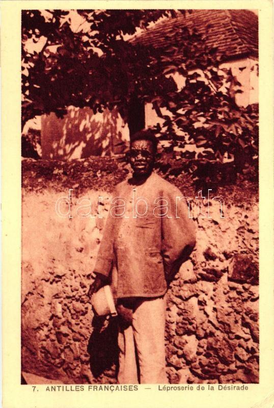 Antilles Francaises / French West Indies folklore, leper from La Désirade, Francia nyugat-indiai folklór, leprás La Désirade-ból