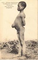 Afrique Occidentale, Exubérance ombilicale fréquente ches les jeunes indigenes / African folklore